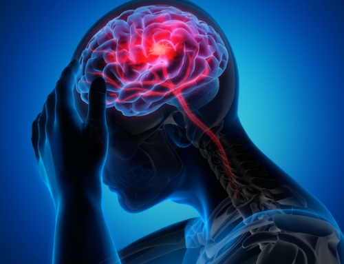 Stroke Prevention, Risk Factors & Warning Signs